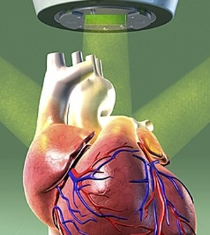 Radiation during heart tests higher for patients in US, says new Research