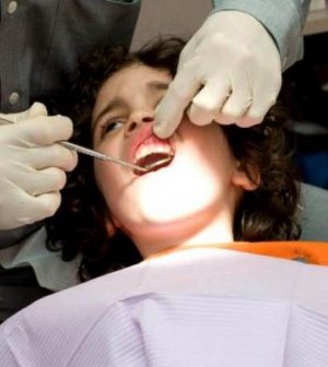 CDC: More low-income kids need dental sealants, Report