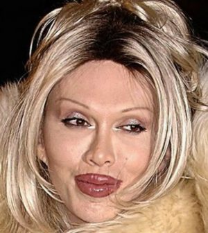 Pete Burns dies at the age of 57, Report