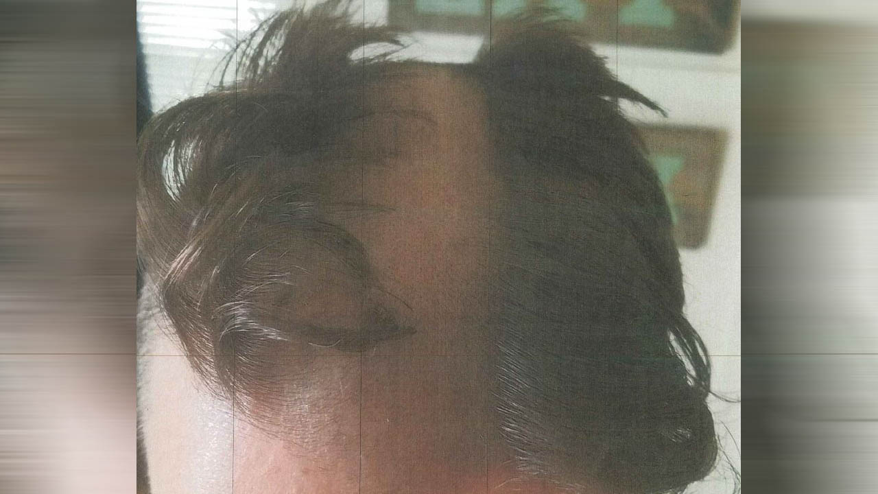 Barber Shaves Bald Patch On Man's Head After Alleged 'Fidgeting'