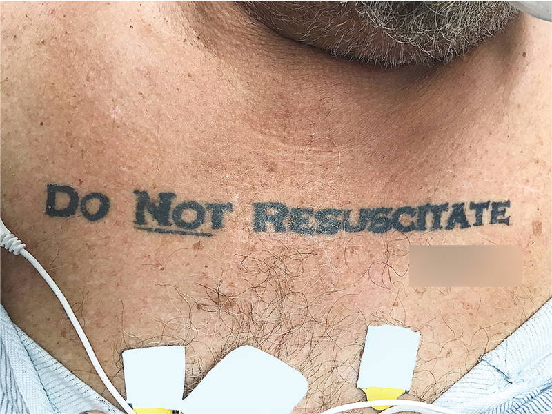 Miami Doctors Honors 'Do Not Resuscitate' Tattoo on Unconscious Patient
