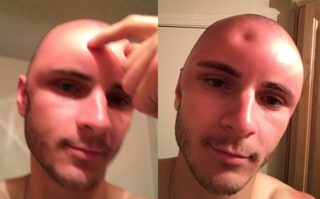 Guy's Head Gets So Sunburned It Swells To Twice Its Size (Photo)