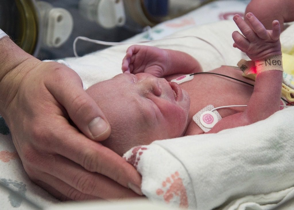 Uterus transplant recipient gives birth for the first time in Dallas