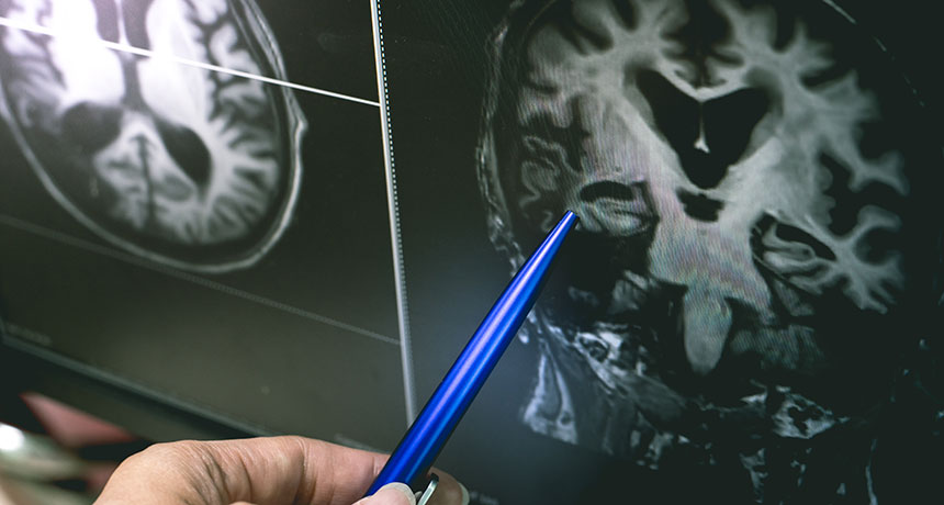 Alzheimer's link to herpes virus in brain, says new study