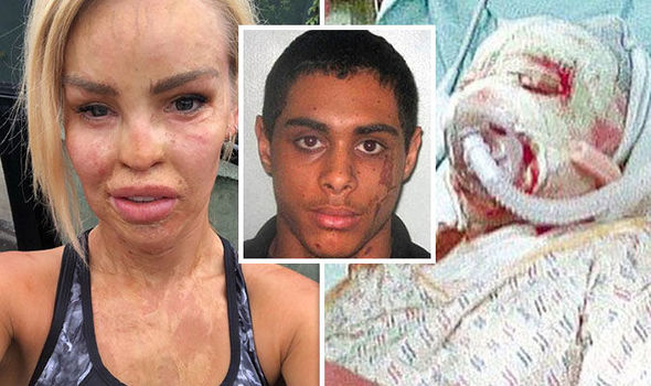 Katie Piper attacker released from life sentence